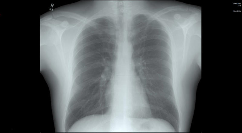 Chest x-ray of the human body over a black background for coronavirus or Covid-19 concepts